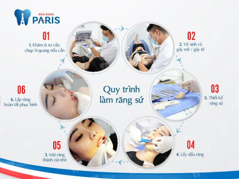 Quy trình trồng răng sứ với công nghệ chuẩn Pháp mới Năm 2018 2