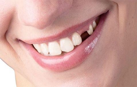 Trồng răng giả loại nào tốt nhất 2017 - [Lời khuyên từ chuyên gia] 1