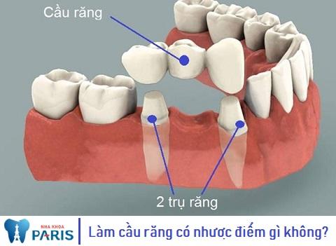 Làm cầu răng sứ có những ưu, nhược điểm nào?