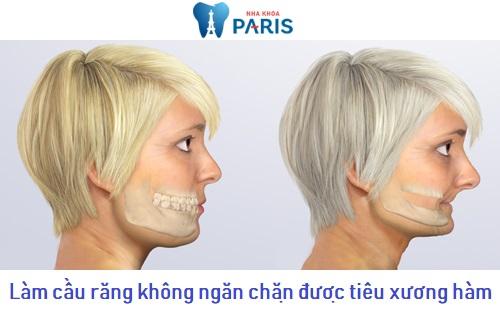 Nhược điểm của cầu răng sứ: Không ngăn chặn được tình trạng tiêu xương hàm