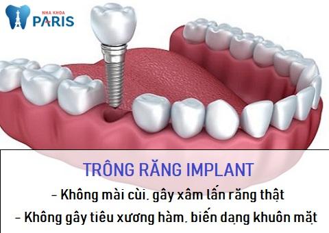 Trồng răng Implant khắc phục được những nhược điểm của làm cầu răng