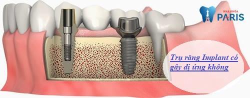 trụ răng Implant có gây dị ứng không