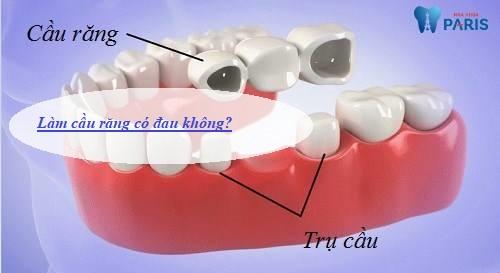 Làm cầu răng có đau không? BS tư vấn kỹ thuật MỚI AN TOÀN 1