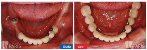 Trồng răng hàm dưới giá bao nhiêu?Bảng Giá MỚI NHẤT T1/2018 4