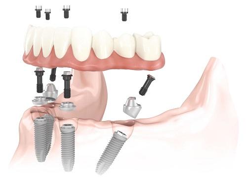 Top 5 biến chứng Implant thường gặp nhất và cách khắc phục hiệu quả! 2