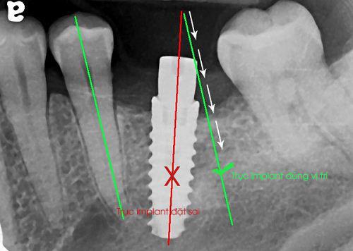 Top 5 biến chứng Implant thường gặp nhất và cách khắc phục hiệu quả! 3