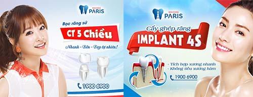 Điểm khác biệt của các phương pháp trồng răng sứ là gì? 2