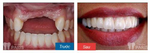 Chi phí trồng răng sứ giả vĩnh viễn có giá là bao nhiêu tiền hợp lý 4