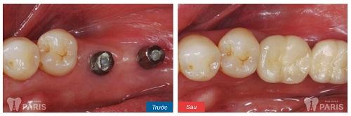 Bác sĩ tư vấn chi tiết: Trồng răng giả có đau không? 3