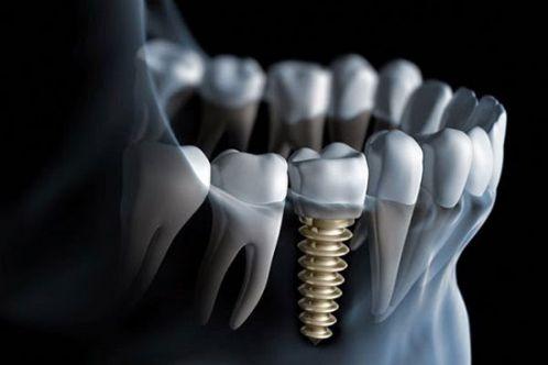 Những điều cơ bản về các phương pháp trồng răng giả bạn đã biết chưa? 4