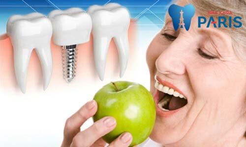 Cấy ghép răng implant 4S - Giải pháp trồng lại răng KHÔNG ĐAU 2