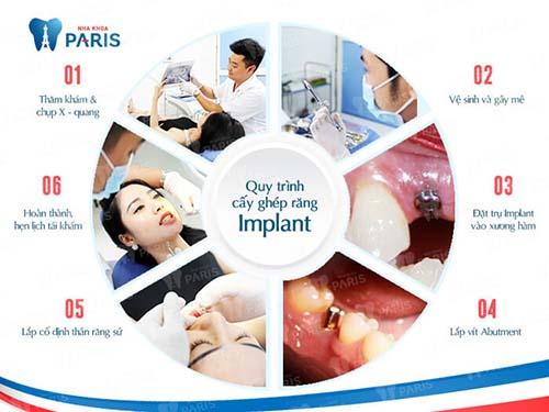 Cấy ghép răng implant 4S - Giải pháp trồng lại răng KHÔNG ĐAU 3