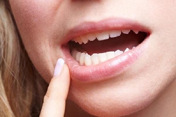 Răng số 6 bị lung lay có nên nhổ và trồng răng Implant không? 1