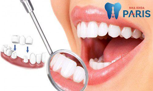 Giá trồng răng sứ không kim loại bao nhiêu tiền? [Bảng giá 2017] 1