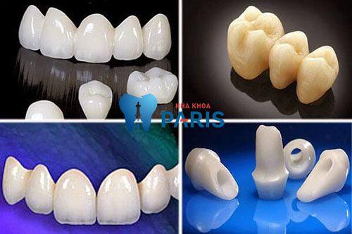 Giá trồng răng sứ không kim loại bao nhiêu tiền? [Bảng giá 2017] 2