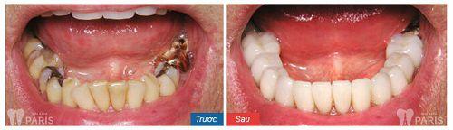 Giá trồng răng sứ không kim loại bao nhiêu tiền? [Bảng giá 2017] 4