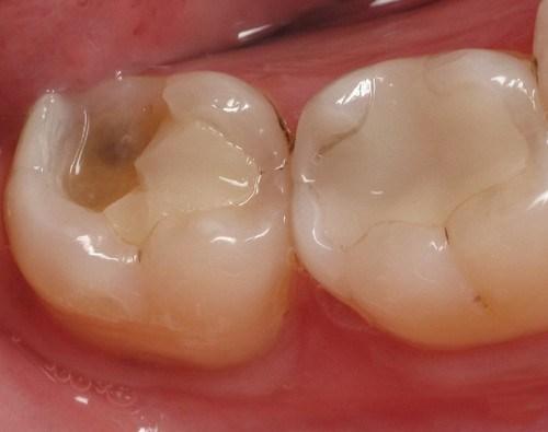 Răng số 7 bị vỡ - Phân tích nguyên nhân và cách khắc phục phù hợp 1