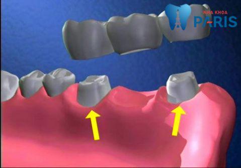 Bảng Chi phí trồng răng giả vĩnh viễn giá bao nhiêu tiền là chuẩn [2017] 2