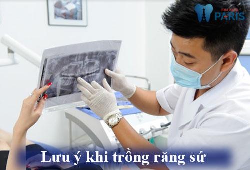 Hé lộ các kỹ thuật trồng răng sứ mới phục hình răng không đau tốt nhất 5