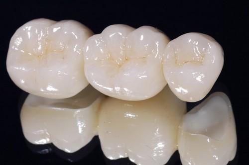 Răng giả có bị sâu không? Chăm sóc răng thế nào để luôn bền đẹp? 1