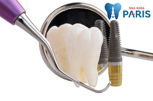 Trồng răng implant giá bao nhiêu tiền với CN cấy ghép implant 4S? 1