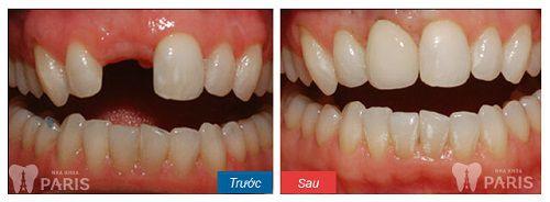 Kỹ thuật làm răng implant 3