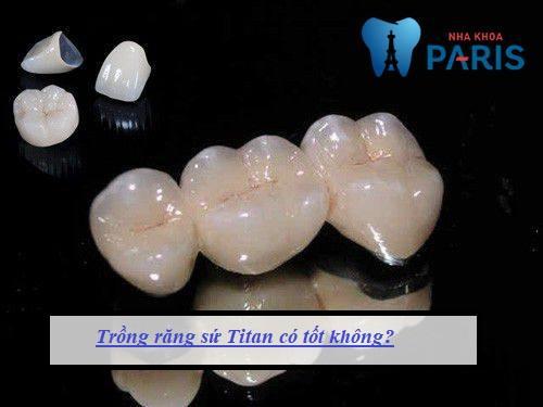 trồng răng sứ Titan giá bao nhiêu tiền