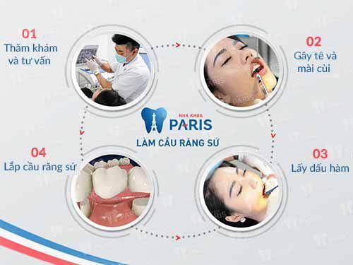 Trồng răng có mấy loại? Đặc điểm, tính chất từng loại là gì? 3