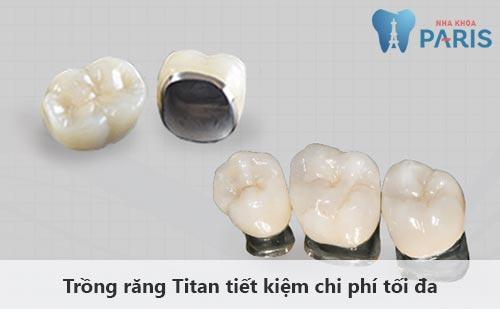 Trồng răng Titan - Giải pháp khôi phục răng mất tiết kiệm chi phí tối đa 1