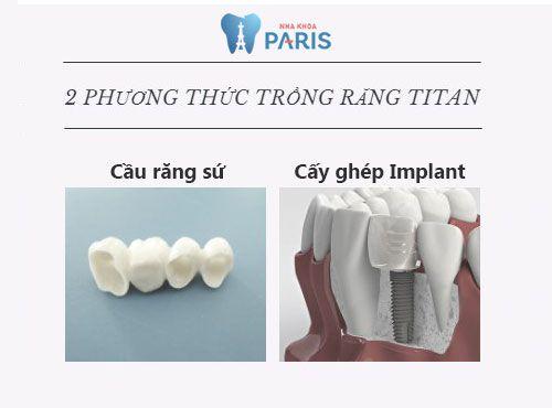 Trồng răng Titan - Giải pháp khôi phục răng mất tiết kiệm chi phí tối đa 2