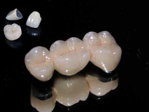 Nên trồng răng giả loại nào tốt nhất hiệu quả BỀN - ĐẸP vĩnh viễn 1