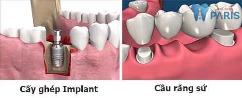 3 Yếu tố chi phối quyết định nên làm răng Implant hay cầu răng 1