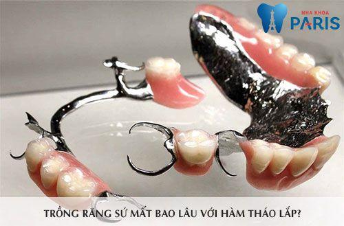 Trồng răng sứ mất bao lâu? 2 yếu tố quyết định tổng thời gian thực hiện 2