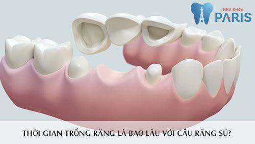 Trồng răng sứ mất bao lâu? 2 yếu tố quyết định tổng thời gian thực hiện 3
