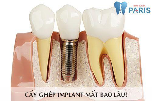 Trồng răng sứ mất bao lâu? 2 yếu tố quyết định tổng thời gian thực hiện 4