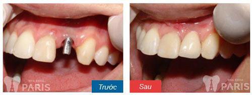 Trồng răng giả mất thời gian bao lâu và dựa vào những yếu tố gì? 2