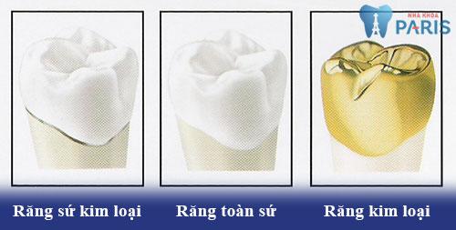 Chi phí làm răng sứ thẩm mỹ giá bao nhiêu tiền? Bảng giá răng sứ 2018 2