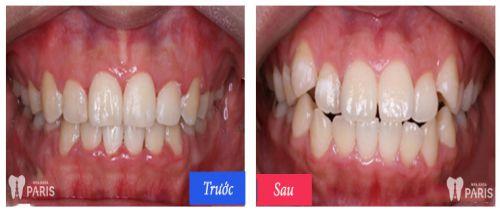 Chi phí trồng răng khểnh hết khoảng bao nhiêu tiền là HỢP LÝ? 3