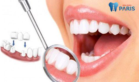 Có nên làm cầu răng không? Làm cầu răng có tốt không? BS tư vấn 1