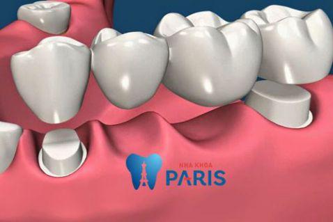 Có nên làm cầu răng không? Làm cầu răng có tốt không? BS tư vấn 3