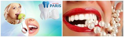 Giải đáp từ chuyên gia: Làm răng sứ ảnh hưởng gì? có hại gì không? 2