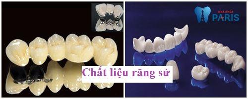 Nha Khoa Paris - Địa chỉ làm cầu răng tốt & uy tín nhất tại Hà Nội 2