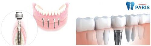 Quy trình trồng răng Implant 4S theo tiêu chuẩn quốc tế Năm [2017] 1