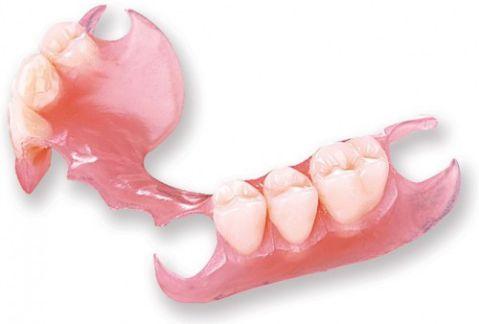 Hé lộ các kỹ thuật trồng răng sứ mới phục hình răng không đau tốt nhất 2