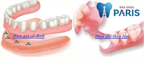 giá làm răng giả nguyên hàm 1