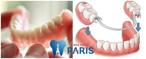 Có nên dùng hàm tháo lắp khi răng bị gãy hay không? [BS Tư Vấn] 2