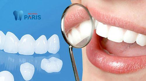 Làm răng sứ mất bao lâu - Thời gian làm răng sứ chi tiết nhất 1