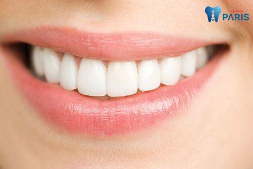 Làm răng sứ mất bao lâu - Thời gian làm răng sứ chi tiết nhất 3