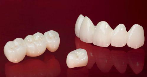 Nên trồng răng giả loại nào tốt - Đẹp nhất? Lời khuyên từ bác sỹ 1