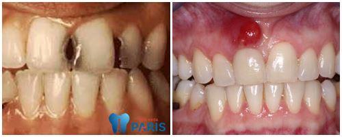 Nguyên nhân và cách khắc phục răng cửa bị lung lay nhẹ